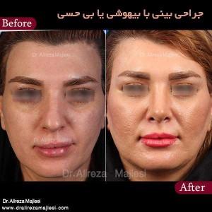 جراحی بینی با بیهوشی یا بی حسی