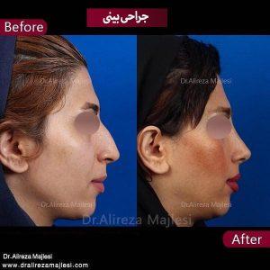 جراحی بینی اصفهان
