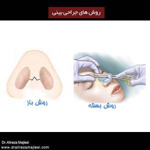 روش های جراحی بینی