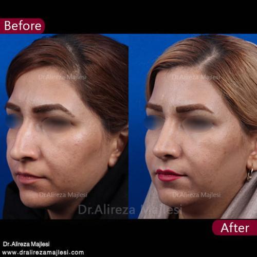 جراحی بینی 27