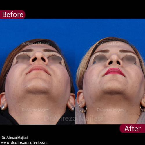 جراحی بینی 29