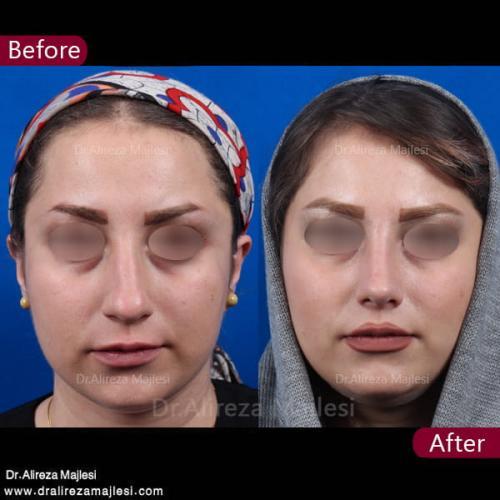 جراحی بینی 30