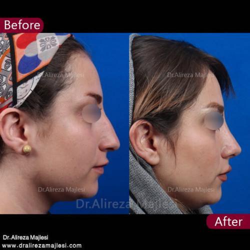 جراحی بینی 31