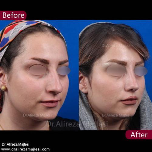جراحی بینی 32