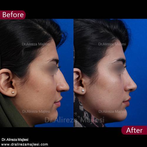 جراحی بینی 38