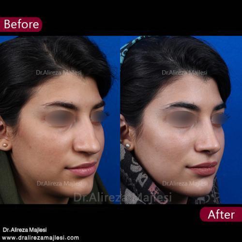جراحی بینی 40