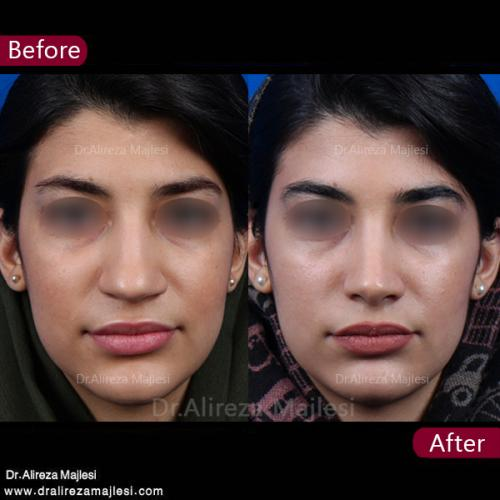 جراحی بینی 43