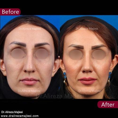 جراحی بینی 62