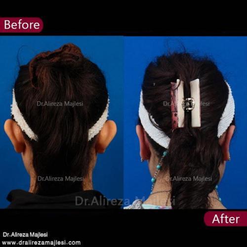 جراحی گوش 11