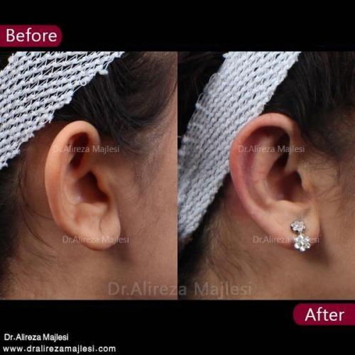 جراحی گوش 12